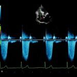 mlAlpha_Heart_CW_Doppler_Imaging_Cardiac