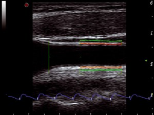 mlSevenCarotidArtery(RF-QIMT_QAS)_Vascular