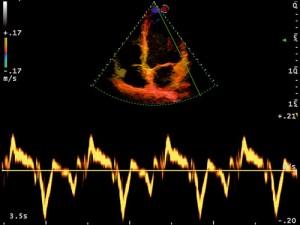 mlSevenHeart_TissueDopplerImaging(TVM)_Cardiology